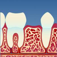 Implantat_illustrasjon_1