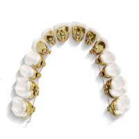 usynlig-tannregulering-incognito